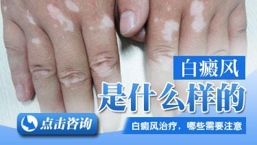 手部白癜风预防有什么好方法